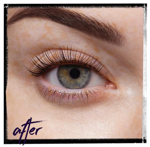 LVL_ After Treatment Image (Framed)