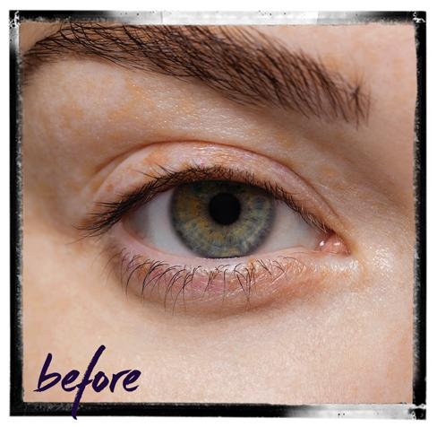 LVL_ Before Treatment Image – (Framed)